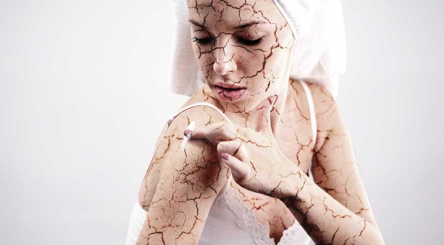 Łuszczyca – choroba o charakterze zapalnym