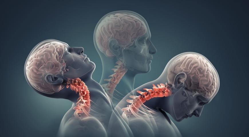 stwardnienie rozsiane – najnowsze badania szansą dla wielu chorych